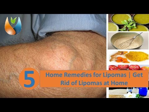 5 Home Remedies for Lipomas | Get Rid of Lipomas at Home