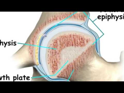 What Is Epiphyseal Closure