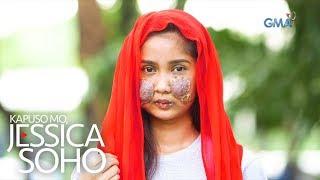 Kapuso Mo, Jessica Soho: Problema ni Patricia, nagsimula lang sa isang tigyawat?