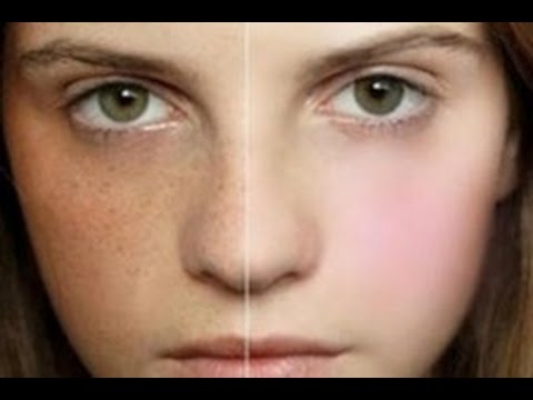 how to get rid of freckles