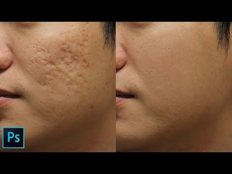 How to Remove Holes Caused by Acne Scars in Photoshop - Split Frequency Healing Retouching Technique