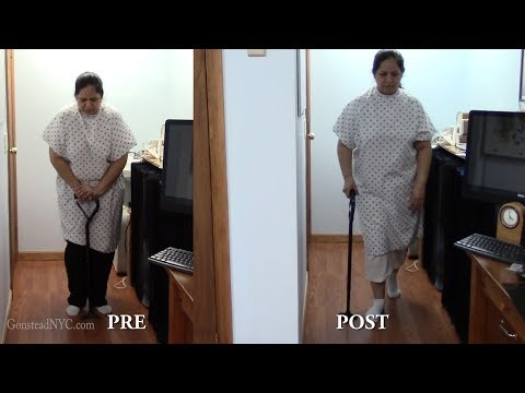 2 Months of Severe knee pain and swelling with hip pain HELPED by Dr Suh Gonstead Chiropractor