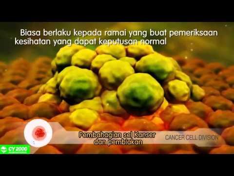 Bagaimana Sel Kanser Terbentuk