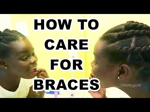 HOW TO CARE FOR YOUR BRACES | CLEANING, BRUSHING, FLOSSING, ON THE GO