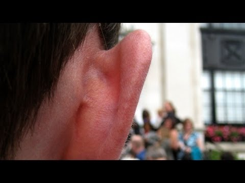 How to Prevent an Ear Infection | Ear Problems