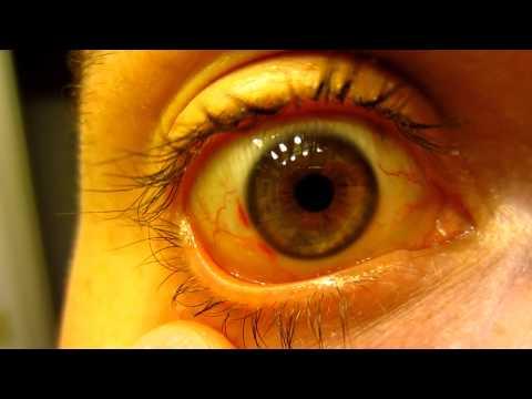 My Eye 6 Days After Lasik Eye Surgery - Corneal Flap Healing - Red Spots Fading