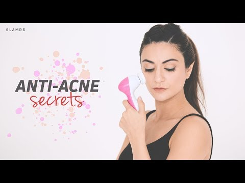 How To: Combat Pimples And Acne | Affordable And Effective Remedies
