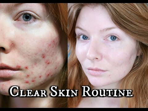 Clear Skincare Routine for Acne | How I Cleared My Skin | Talk Through
