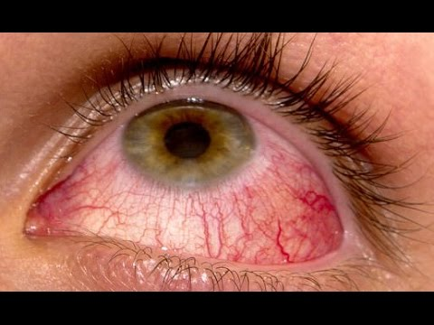 Home Remedies for Conjunctivitis Pink Eye in Children