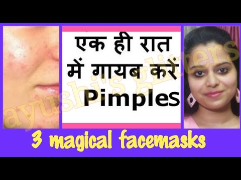 पिम्पल्स कैसे हटाए | HOW TO REMOVE PIMPLES OVERNIGHT IN HINDI | 3 magical herbal face masks