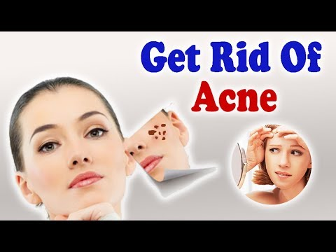 Acne - जानिए आयुर्वेद में मुहासों का सफल इलाज।