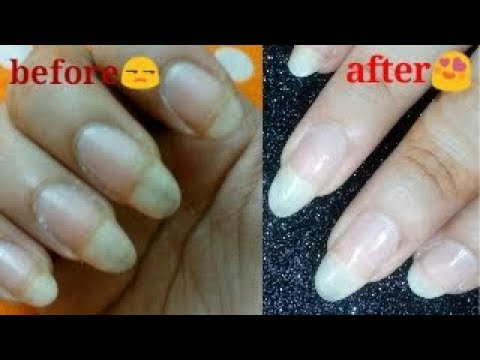 Home remedy to get rid of yellow / discolored nails 💯 guarantee