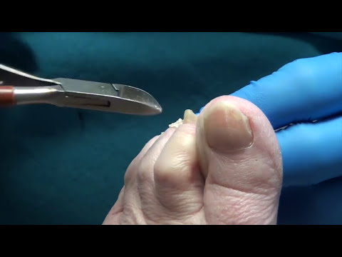 Trimming Thick Diabetic Nails and Calluses