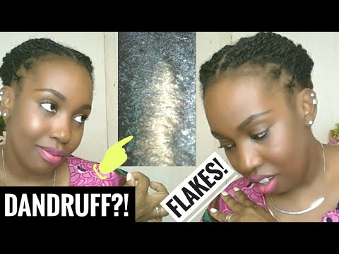 How  to get rid of Dandruff and a Flaky scalp