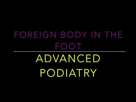 Foreign Body in the Foot | Dr. Jairo Cruz Jr.