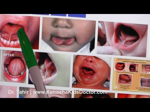 What Is Tongue Tie And What To Do About It