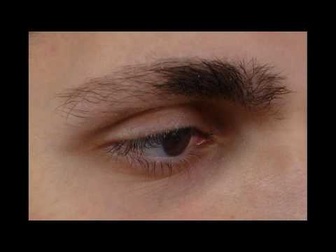 Atopic Dermatitis (Eczema) Leads To Thinning Eyebrows How To Overcome
