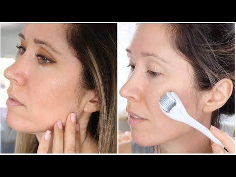 BANISH Acne Scars | Scar Treatment Routine