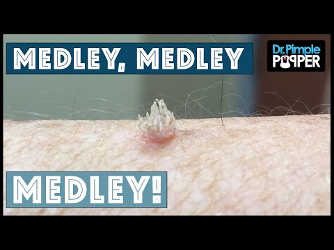 A Dr Pimple Popper Medley!