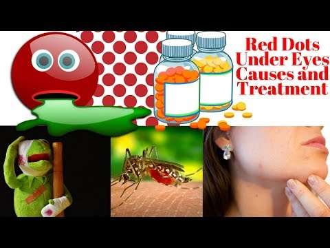 Red Dots Under Eyes Causes and Treatment