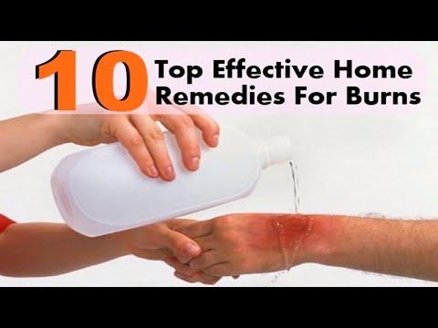 जली त्वचा का उपचार घरेलू नुस्खों के साथ | Burn Treatment - Home Remedies For Burns | U Me & Health |