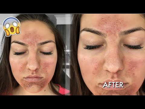 SCARY CHEMICAL PEEL EXPERIENCE