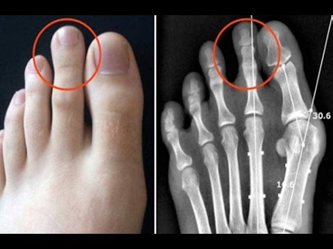 Only 14% of World Population Has Longer Second Toe and This Is Why
