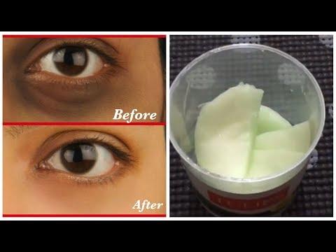 DIY Dark Circles & Dark eyelids Remover Pads.!! 👀