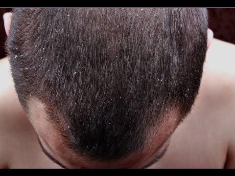 How to Cure Dandruff Permanently - Remove Dandruff Fast