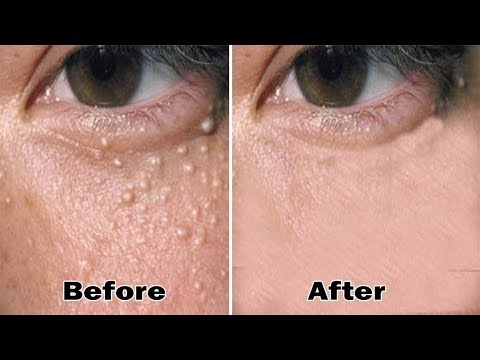 5 Minutes to Remove All Milia On Your Face At Home Remedies | Health 365| Milia Treatment