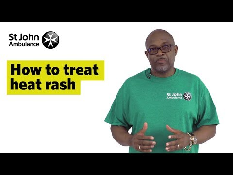 How to Treat Heat Rash - First Aid Training - St John Ambulance