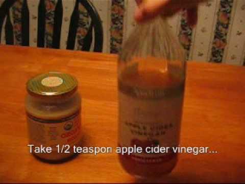 Apple cider vinegar + honey = natural cough remedy