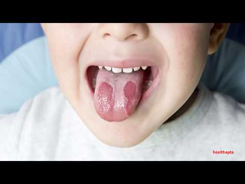 HOW TO TREAT BURNING TONGUE SYNDROME