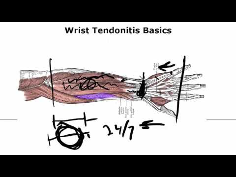 Wrist Tendonitis Basics - Critical To Know If You Want A Fix