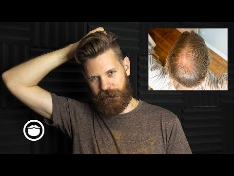 The Biggest Mistake When Dealing with Hair Loss