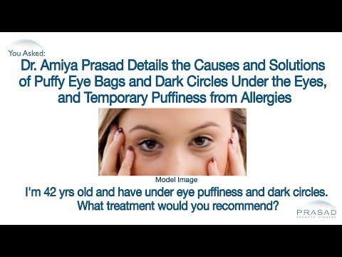 How to Get Rid of Puffy Eyes and the Cause and Treatment for Under Eye Dark Circles