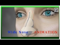 Rhinoplasty Animation - How can a Wide nose be narrowed?