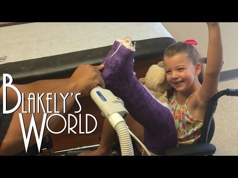 Blakely's Broken Leg   New Cast!