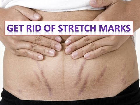 How to Get Rid of Stretch Marks Fast at Home