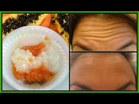 HOW TO GET RID OF FOREHEAD, HANDS + UNDER EYES WRINKLES, LOOK YEARS YOUNGER NATURALLY |Khichi Beauty
