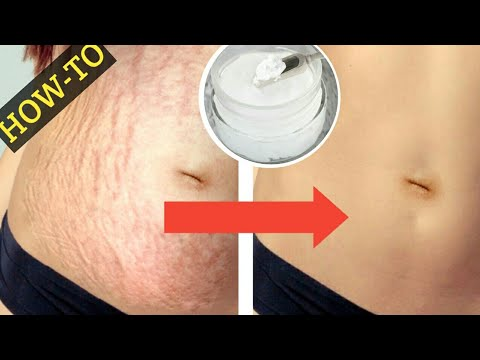 HOW TO USE COCONUT OIL FOR STRETCH MARKS | HOME REMEDIES FOR STRETCH MARKS | NATURAL REMEDIES