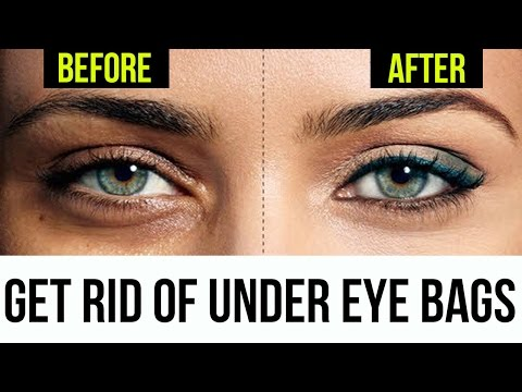 How To Get Rid of Bags Under Eyes | 5 Tricks That Works FAST & EASY!
