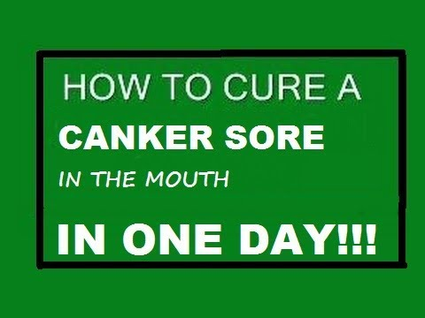 CURE A CANKER SORE IN ONE DAY, heal mouth ulcers, NO FAIL, proven, tested