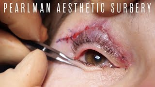 Quad Blepharoplasty and Temporal Brow Lift Surgery   Pearlman Aesthetic Surgery