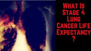 Download What Is Stage 4 Lung Cancer Life Expectancy? Video