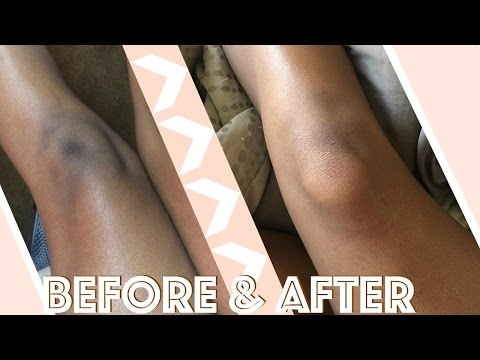 How I Lightened My Knees & Elbows In 2 Weeks | Fast & Cheap