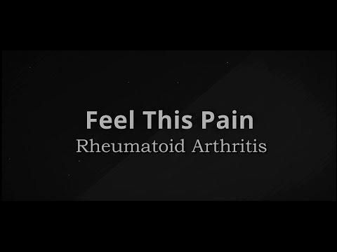 Feel This Pain: S3E8 Rheumatoid Arthritis