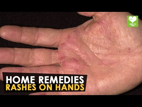 Rashes On Hands - Home Remedies | Health Tone Tips