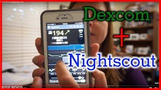 Pebble Watch, Dexcom Share, NightScout Simple CGM - PakVim