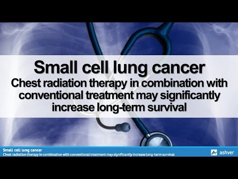 Small cell lung cancer - Chest radiation therapy in combination with conventional treatment may sign